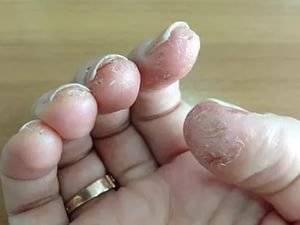 аллергия на пальцах