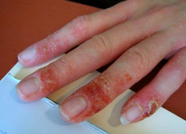 аллергия на шеллак симптомы
