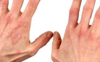 Лечение экземы на руках народными средствами