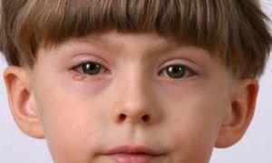Как быстро снять аллергический отек с глаз