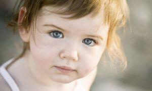 Опухли глаза у ребенка что делать