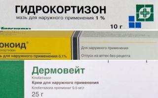 Ихтиоловая мазь при дерматите