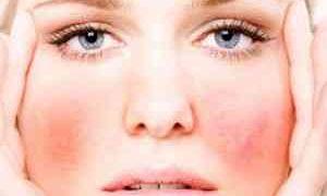 Как снять аллергический отек с лица
