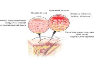 Детский дерматит как лечить