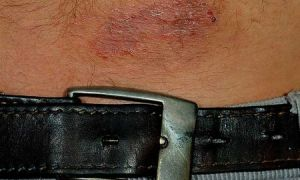 Аллергия на железо