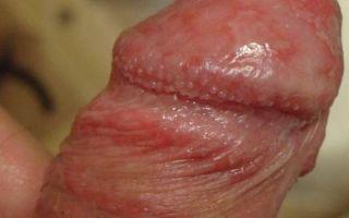 Аллергия на пенисе
