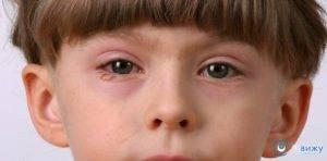 Стоит обратиться к врачу, если у ребенка по утрам опухают глаза