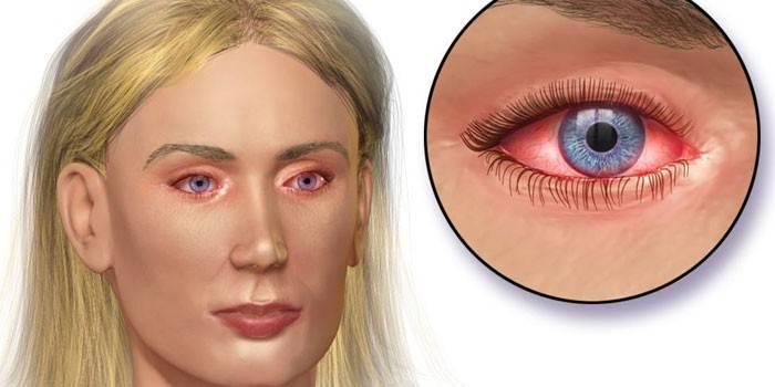 Покраснение глаз при конъюнктивите