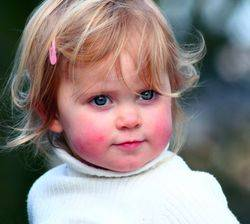 Аллергия на коже лица у девочки
