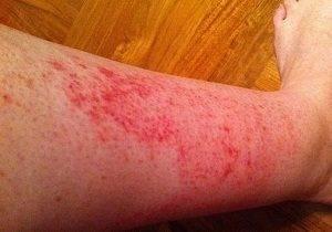 аллергия на ногах у ребенка