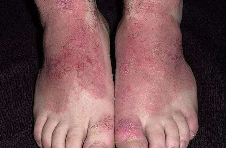 Аллергия на стопах