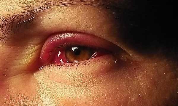 Аллергия на глазах от масла