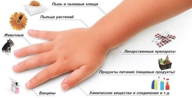 Окружающие нас аллергены