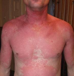 аллергия после приема алкоголя