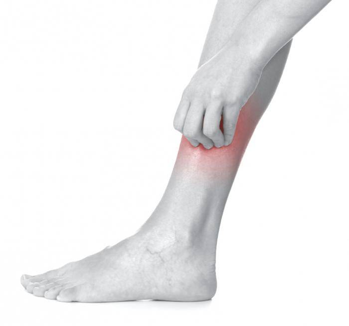 сухая экзема на ногах