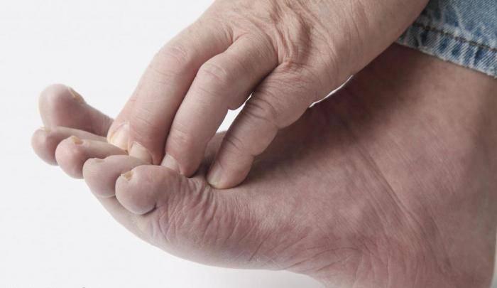 экзема пальцев ног