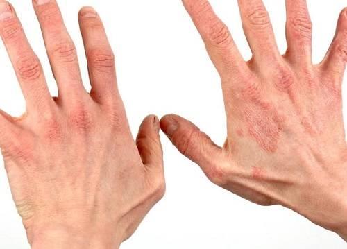 дерматит руки