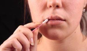 Аллергия во рту и на лице