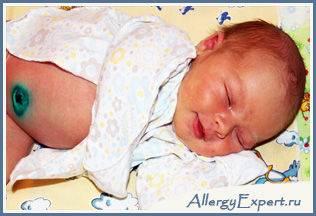 аллергия на смесь у грудничка