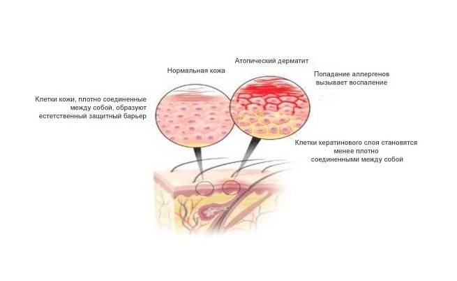 атопический дерматит