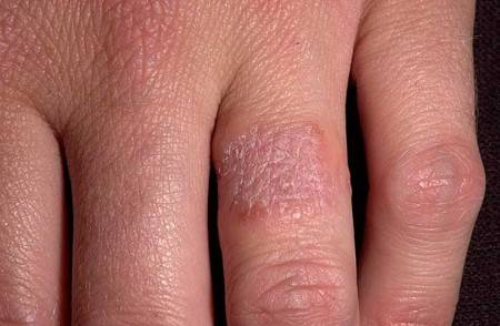 На руках аллергия на металл