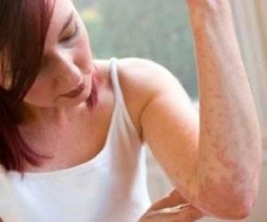 крапивница на руке у женщины