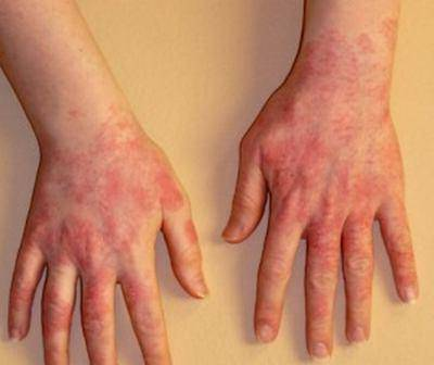 причины холодовой аллергии