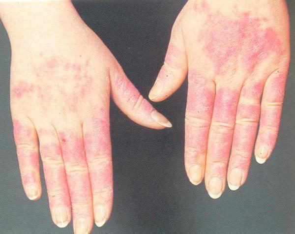 аллергия на холод на руках симптомы и лечение
