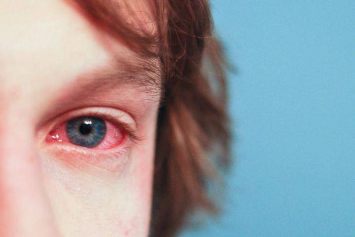 амброзия аллергия как лечить
