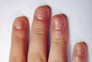 Как избежать аллергии при наращивании ногтей