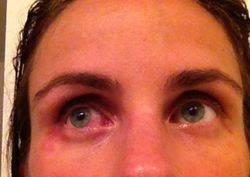 Респираторная аллергия на лак