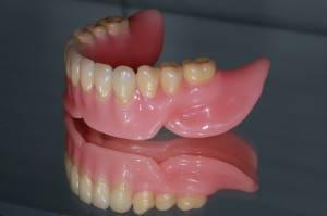 Аллергия на зубные протезы что делать и как лечить