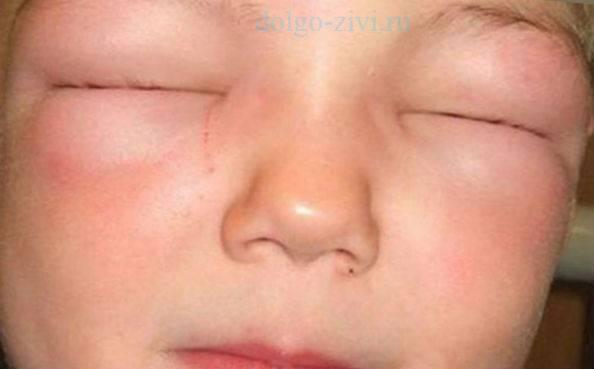 Какие капли помогают при аллергии глаз