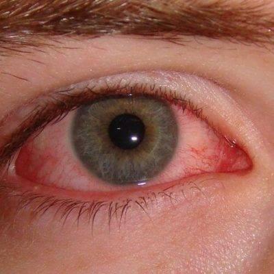 Виды заболеваний воспаления век