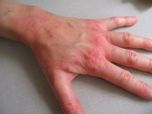 Экзема у детей аллергия на