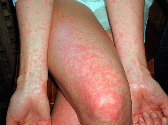 Аллергия на укус насекомого может проявляться и в виде мелкой сыпи по всему телу или на отдельных участках.