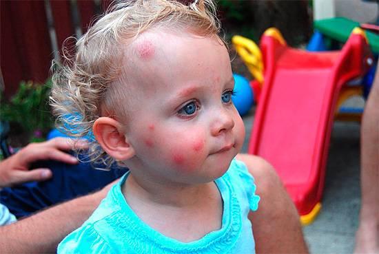 Следы от укусов насекомых на лице ребенка