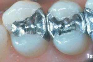 Аллергия на зубную пломбу