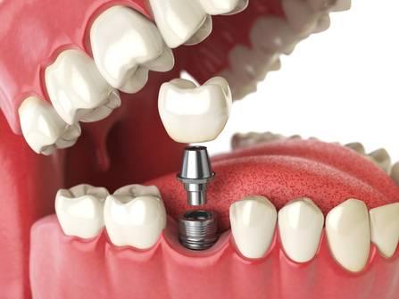 Аллергия на пломбировочный материал симптомы – Здоровье полости рта
