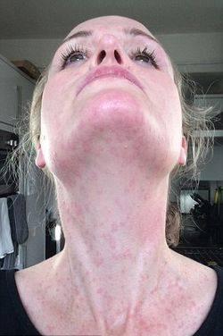 allergiya-na-holod