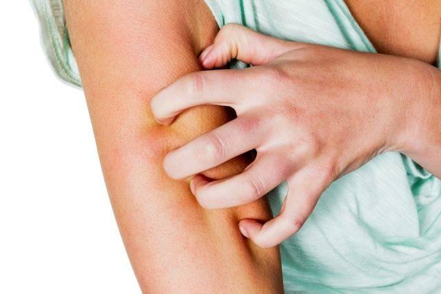 Проявления молочной аллергии на коже
