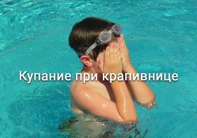 Можно ли мыться при крапивнице?