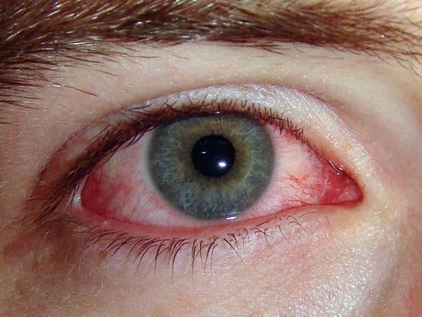 Аллергия на сфинксов