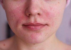 аллергия на лице фото у взрослых