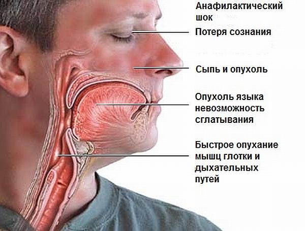 Может ли быть аллергия на стероиды