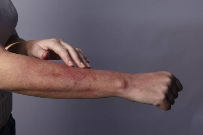при аллергии сыпь