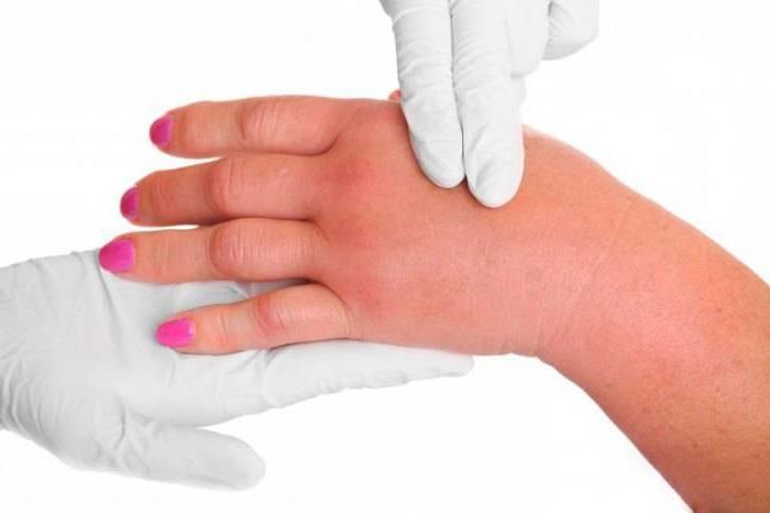 аллергические симптомы