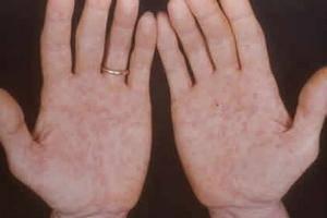 аллергия на ладонях рук
