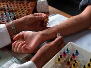Нюансы проведения кожного теста на аллергию детям