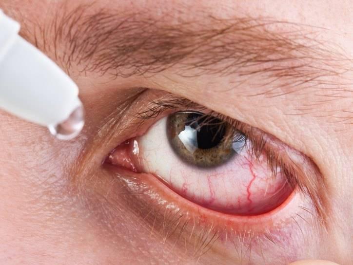 Глазные капли при зуде